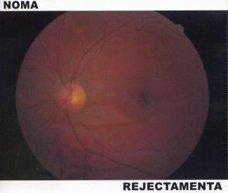 Noma / Rejectamenta—Noma / Rejectamenta (2009)